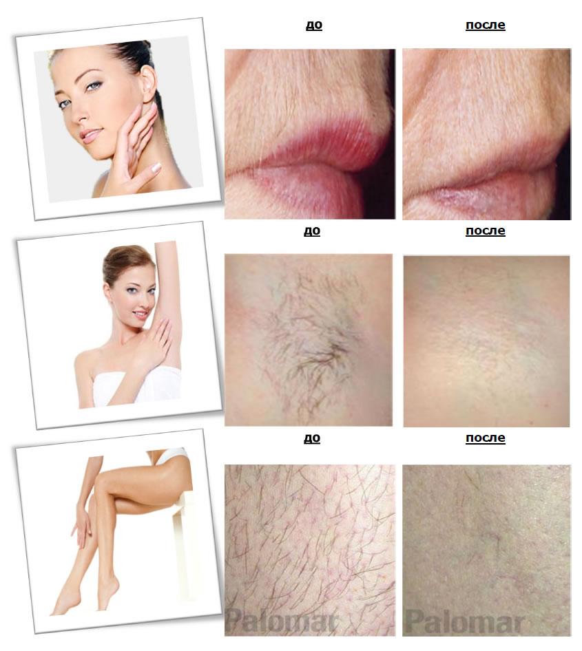 От роста волос на теле в домашних условиях 19